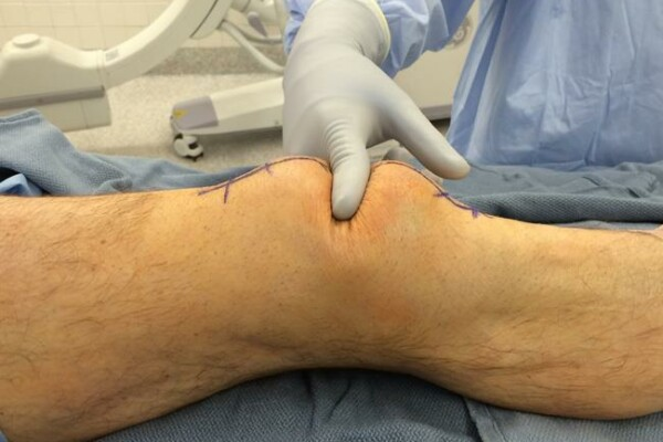 Repeat x-ray discovers missed periprosthetic patella fracture in a patient with an occult effusion seen by diagnostic musculoskeletal ultrasound